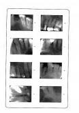 Aspecte privind biologia tesuturilor dentare
