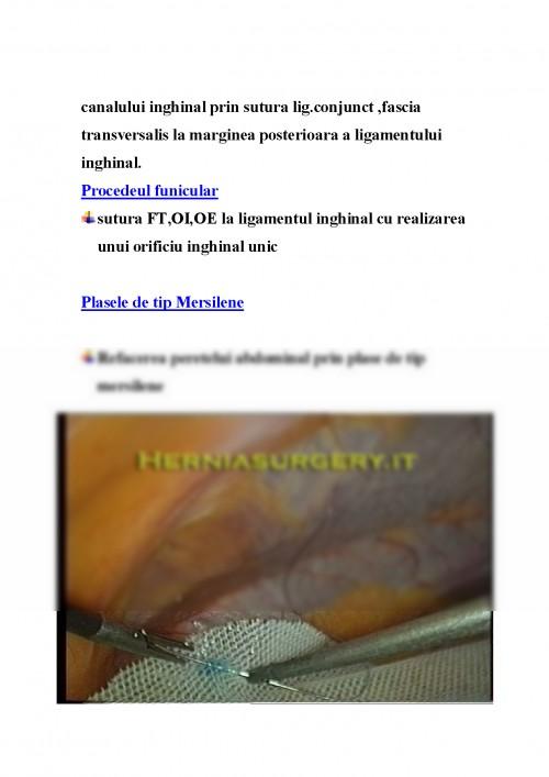 Eventratia (hernie incizionala): tratament - Move&Flex
