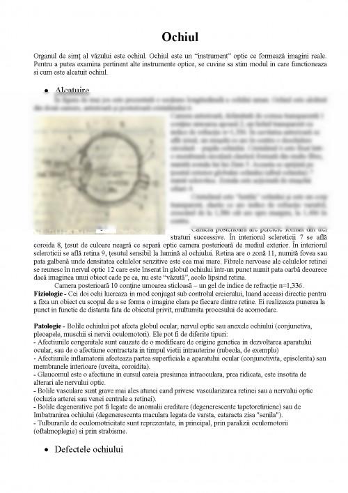 Miopia la copii Patologia congenitală a organelor vederii
